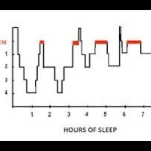 Sleep Doctor Answers Is Sleep Before Midnight Better for Health